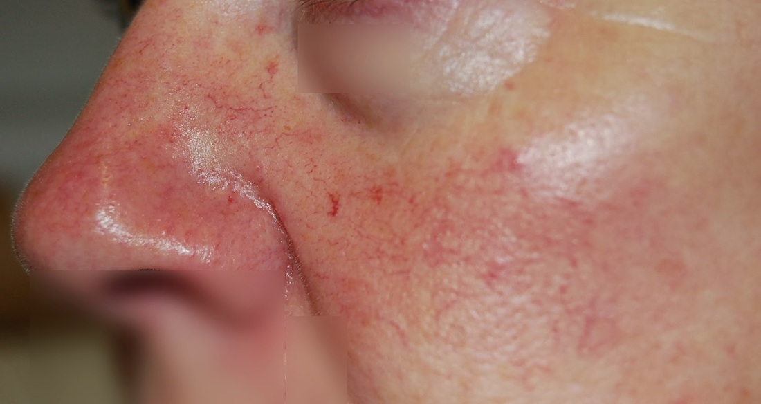spider veins on chin